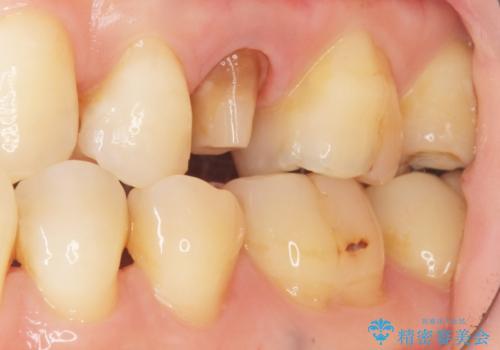 歯が欠けた セラミッククラウンで綺麗に 40代女性の治療中