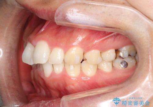 全体のガタガタをインビザラインできれいな歯並びへの治療中