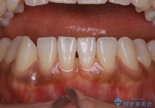 毎日のマスク着用により感じる口臭をPMTCで予防の治療後