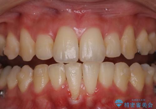 インビザラインでの矯正中に歯科医院でのクリーニングの治療前