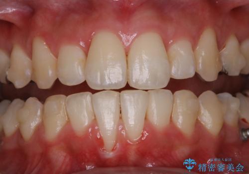 インビザラインでの矯正中に歯科医院でのクリーニングの治療後