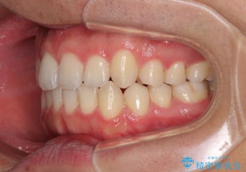 狭い歯列と前歯のデコボコ インビザラインによる矯正治療の治療中