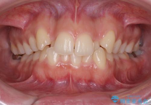 骨格的に左右にずれいている 前歯のデコボコをインビザラインで解消の症例 治療前