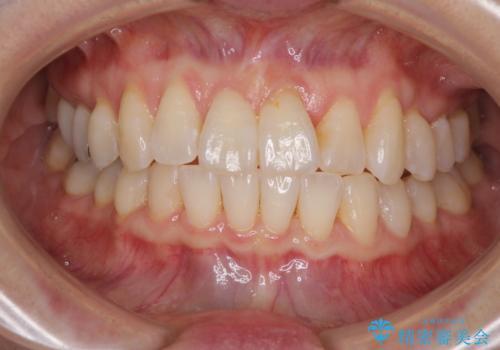 前歯のクロスバイト インビザライン矯正で改善の治療中