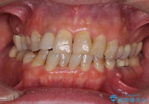 歯列不正と歯周病 総合歯科治療による全顎治療の症例 治療前