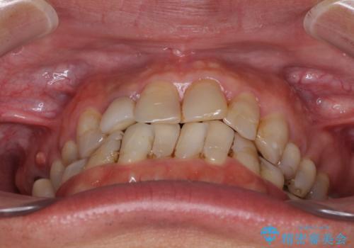 歯列不正と歯周病 総合歯科治療による全顎治療の治療前