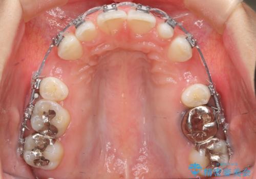出っ歯を治したい 過蓋咬合の治療中