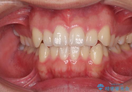 狭い歯列と前歯のデコボコ インビザラインによる矯正治療の症例 治療前
