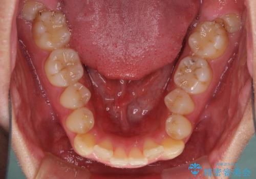 狭い歯列と前歯のデコボコ インビザラインによる矯正治療の治療前