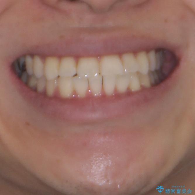 冷たいものがしみて奥歯が痛い 気になる歯並びも治したの治療後(顔貌)