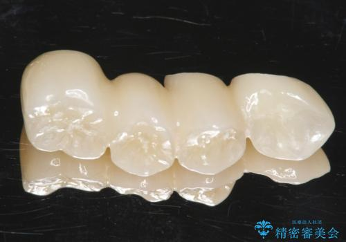 他院でインプラントできないと言われた 上顎洞底挙上術を併用したインプラント 50代男性の治療中