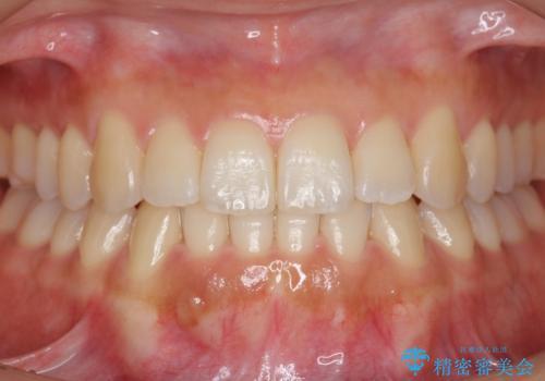 前歯のがたつき インビザラインで 下の奥歯を後ろに下げるの症例 治療後