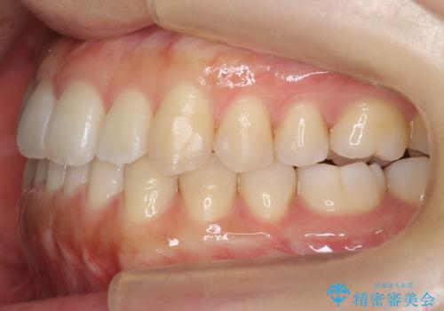 前歯のがたつき インビザラインで 下の奥歯を後ろに下げるの治療後