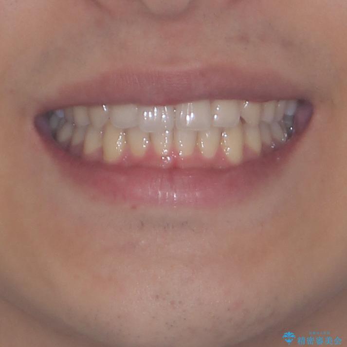 狭い歯列と前歯のデコボコ インビザラインによる矯正治療の治療後(顔貌)