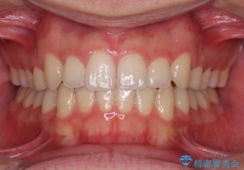 狭い歯列と前歯のデコボコ インビザラインによる矯正治療の症例 治療後