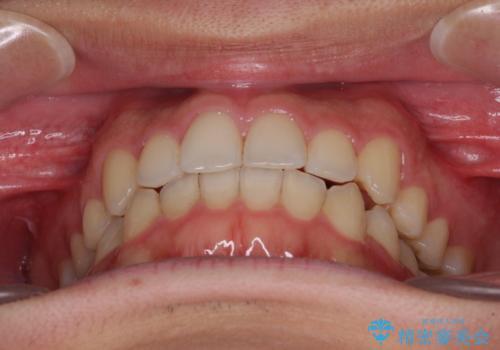 狭い歯列と前歯のデコボコ インビザラインによる矯正治療の治療後