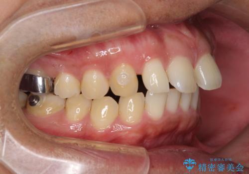 上顎の出っ歯とすきっ歯 補助装置を用いたインビザライン矯正の治療中