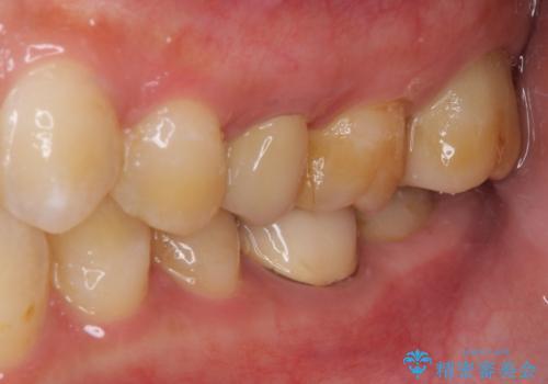 冷たいものがしみる 神経組織の一部を除去した虫歯治療の治療後