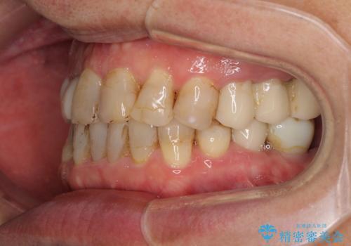 歯列不正と歯周病 総合歯科治療による全顎治療の治療中