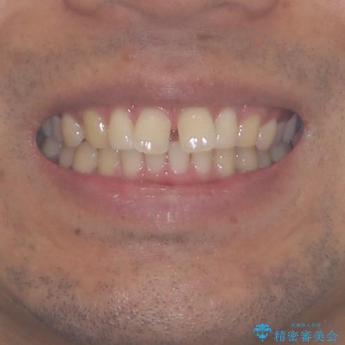 上顎の出っ歯とすきっ歯 補助装置を用いたインビザライン矯正の治療前(顔貌)