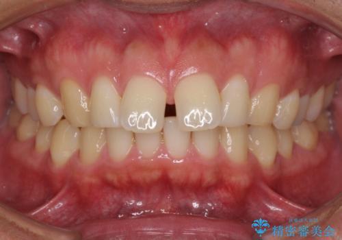 上顎の出っ歯とすきっ歯 補助装置を用いたインビザライン矯正の症例 治療前