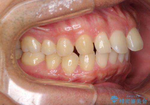 上顎の出っ歯とすきっ歯 補助装置を用いたインビザライン矯正の治療前