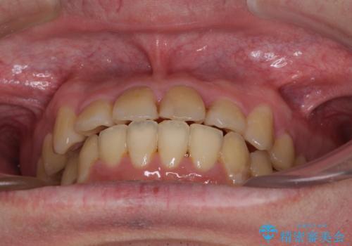歯列全体のクロスバイトを治したい ワイヤー装置による矯正治療の治療後