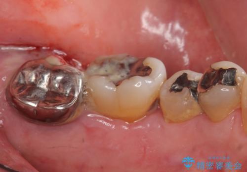 歯周病を治す 再生療法 50代男性の症例 治療前