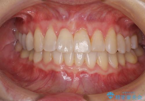 前歯のクロスバイト インビザライン矯正で改善の治療後