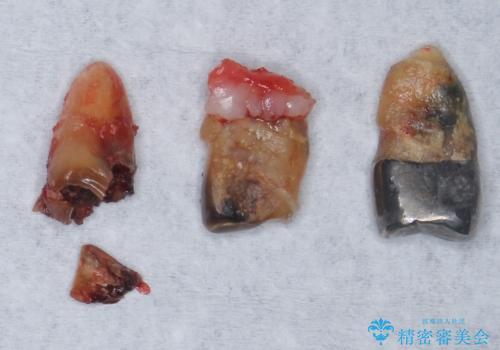 他院でインプラントできないと言われた 上顎洞底挙上術を併用したインプラント 50代男性の治療前