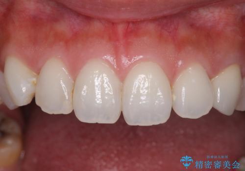 保険診療の変色したクラウン 前歯の審美歯科治療の治療後