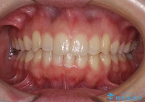 骨格的に左右にずれいている 前歯のデコボコをインビザラインで解消の症例 治療後