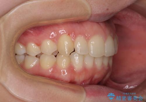 骨格的に左右にずれいている 前歯のデコボコをインビザラインで解消の治療後
