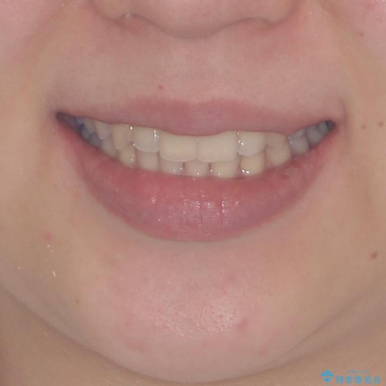 骨格的に左右にずれいている 前歯のデコボコをインビザラインで解消の治療後(顔貌)