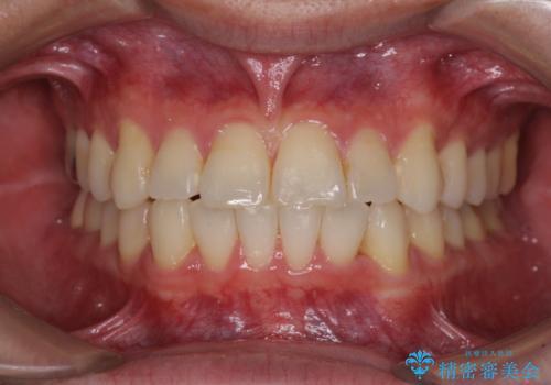 冷たいものがしみて奥歯が痛い 気になる歯並びも治したの症例 治療後