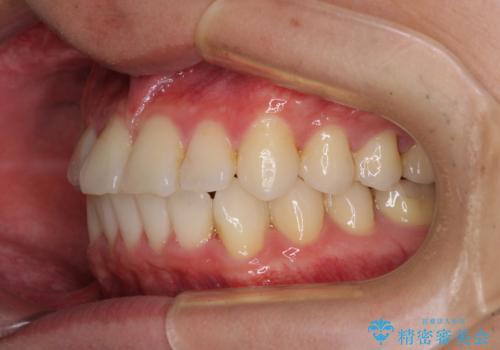 冷たいものがしみて奥歯が痛い 気になる歯並びも治したの治療後