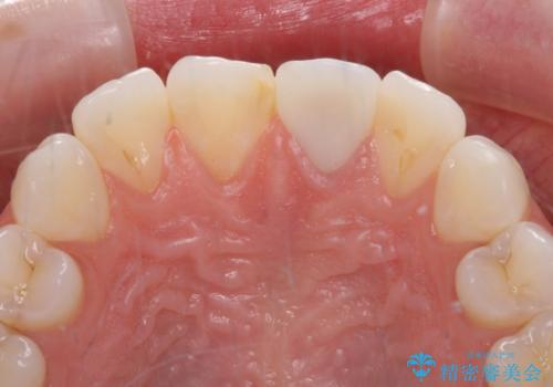 出っ歯に仕上がってしまった前歯 セラミッククラウンの作り替えの治療後