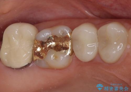 強い咬み合わせでむし歯が悪化 ゴールドインレーによるむし歯治療の治療後