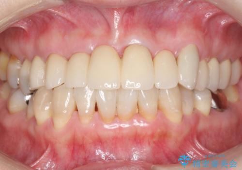 前歯のブリッジの下が虫歯 ブリッジのやりかえの治療後
