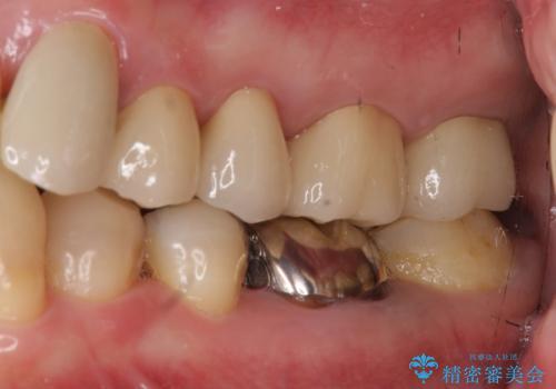 奥歯の被せ物のやり直し 精密根管治療の治療後