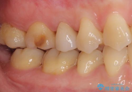 神経が死んで変色した歯 根管治療とオールセラミッククラウンの治療後