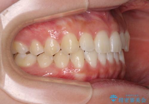乳歯を抜いてインプラントに 咬み合わせ改善のインビザライン矯正の治療後