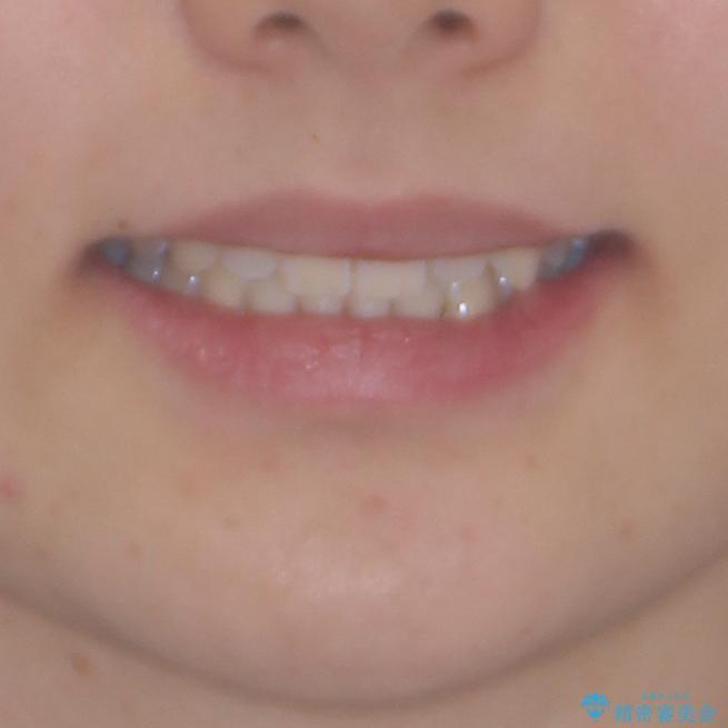 乳歯を抜いてインプラントに 咬み合わせ改善のインビザライン矯正の治療後(顔貌)