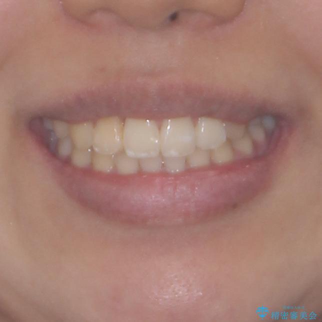 妊娠中に治療を終了 ワイヤー装置によるスピーディーな矯正治療の治療後(顔貌)