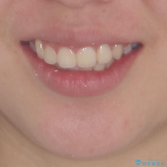 著しい叢生と顎骨のズレ ワイヤー装置による抜歯矯正の治療後(顔貌)