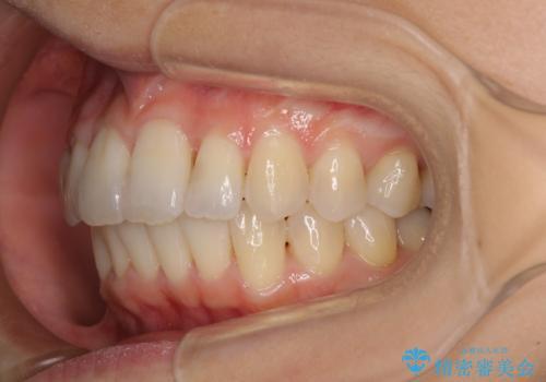 短期間で仕上げたい ワイヤーでの非抜歯矯正の治療後