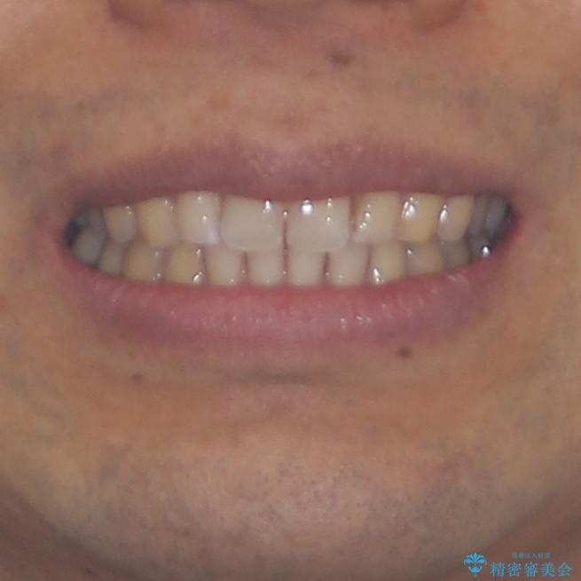 上顎の出っ歯とすきっ歯 補助装置を用いたインビザライン矯正の治療後(顔貌)