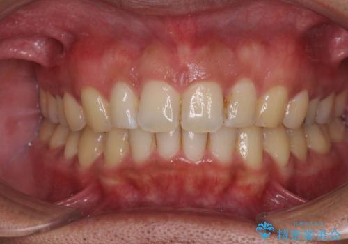 上顎の出っ歯とすきっ歯 補助装置を用いたインビザライン矯正の症例 治療後