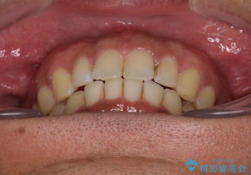 上顎の出っ歯とすきっ歯 補助装置を用いたインビザライン矯正の治療後