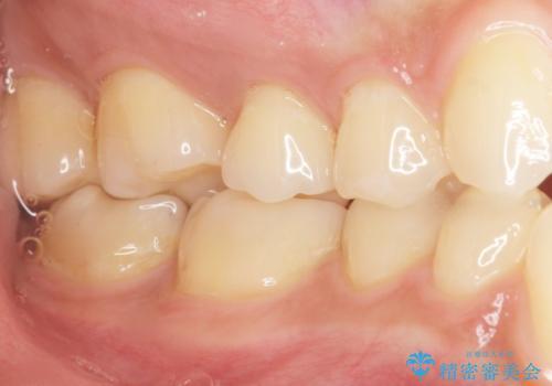 奥歯にフロスを通すと臭い 30代女性の治療後